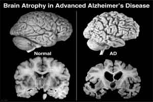 Alzheimer's-Related Degeneration Starts Much Before Symptoms: Study