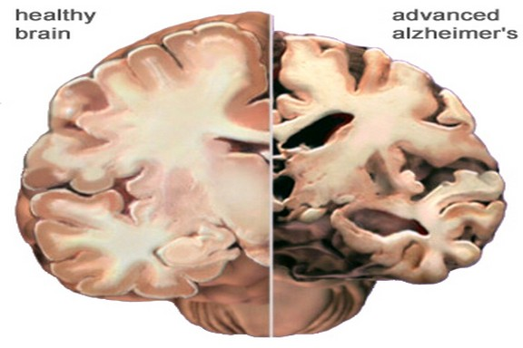 Indian origin UK boy achieves a breakthrough in tests for an early detection of Alzheimers