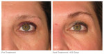 ultherapy for eyebrows