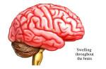 diffuse_encephalitis