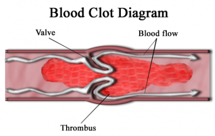 Researchers develop a new technique to detect blood clots