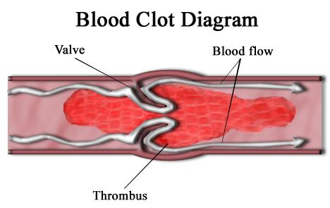 Researchers develop a new technique to detect blood clots