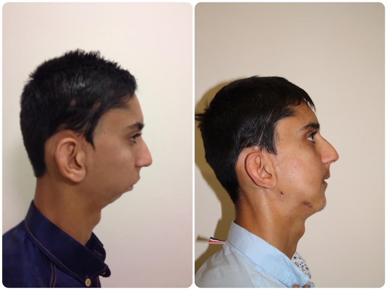 Fortis Gurgaon surgeons repair fused jaw bones of a 21-year old