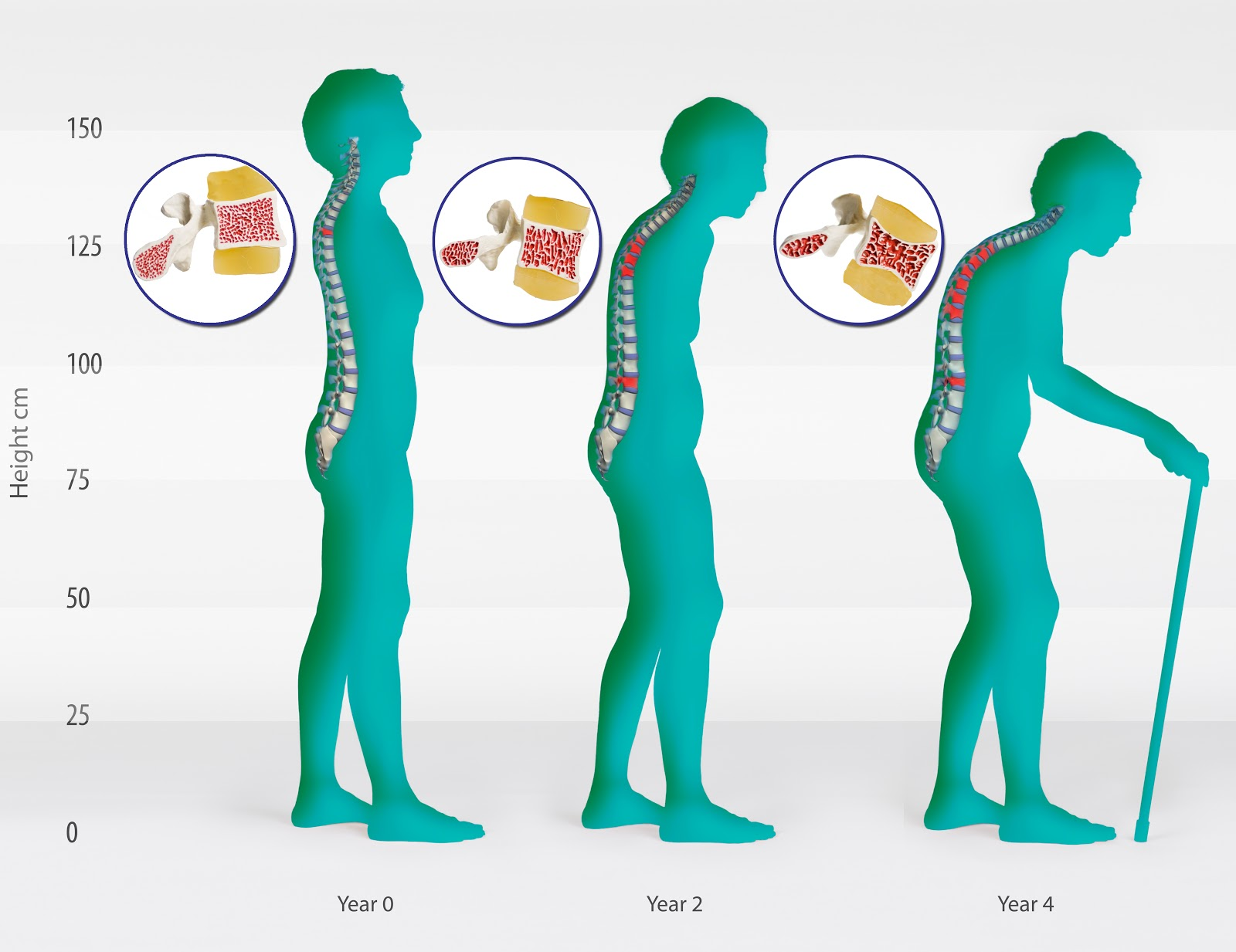 Aurobindo Pharma gets USFDA nod for generic osteoporosis drug