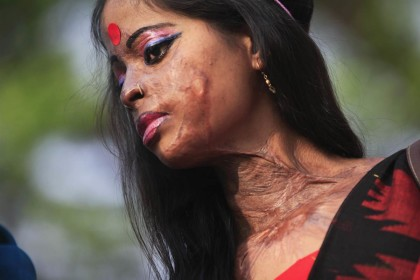 Acid attack victims entitled to free treatments in private hospitals in Delhi