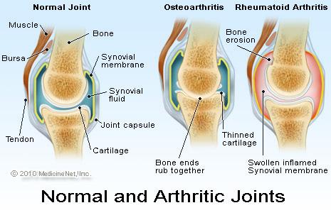 People with rheumatoid arthritis at increased risk of cardiovascular disease