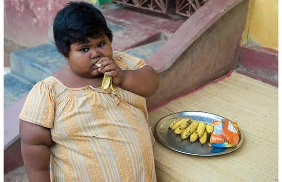 Obese kids as young as 8 show signs of heart disease