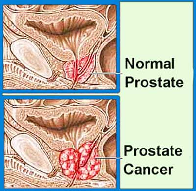 Cuba in third stage trial process for advanced prostate cancer vaccine