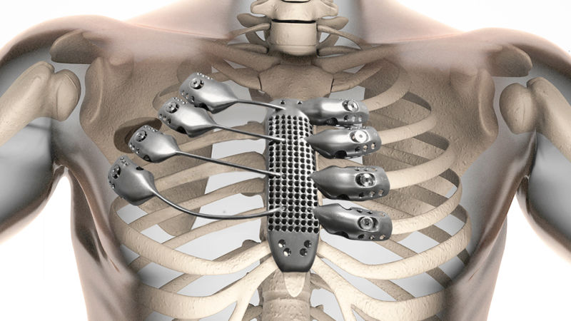 First 3D rib implant for a Spanish cancer patient