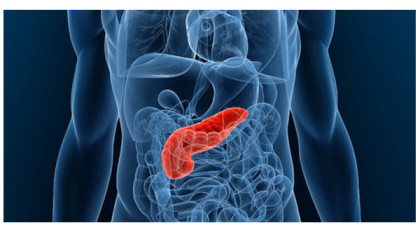 Researchers find experimental drug for pancreatic cancer