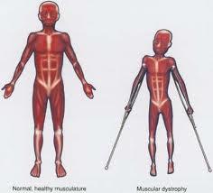 Indian-origin boy denied Duchenne muscular dystrophy treatment in UK