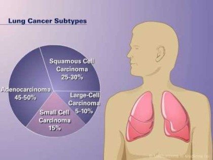 FDA approves immunotherapy drug to treat lung cancer