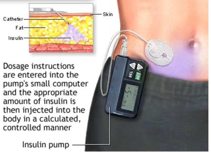 Insulin pumps safe for five years, says a new study