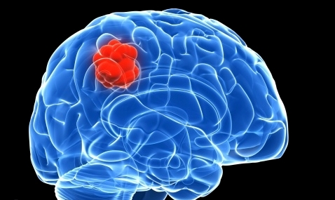 Blood-brain barrier breached for first time to treat cancer