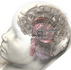 Brian prosthesis to aid people with memory loss