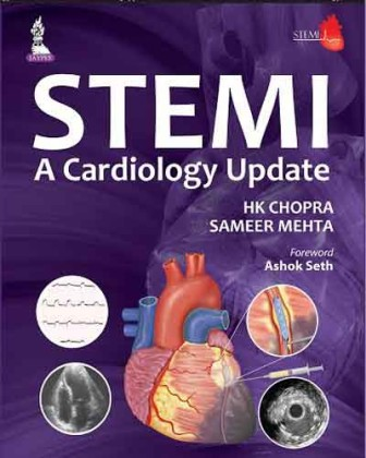 Indian Cardiologists to release STEMI update
