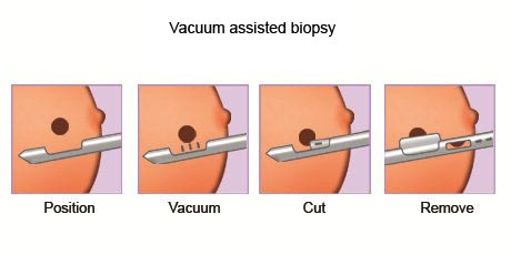 Vacuum Assisted Breast Biopsy introduced to treat breast cancer