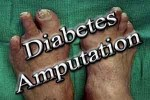 diabetes amputation