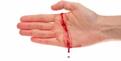 FDA approves Baxalta's drug Adynovate for rare bleeding disorder