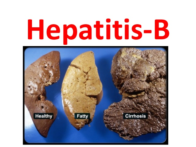 CENTRE LAUNCHES DRIVE TO ERADICATE HEPATITIS B