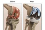 knee-replacement1