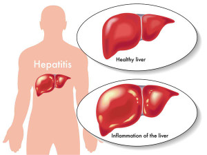 Natco Pharma gets DCGI nod to sell hepatitis C treatment drug