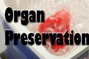 New approach to preserving organs for later use