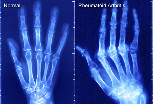 London: Simple blood test could detect arthritis 16 years in advance