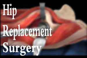 J&K: 72 BPM Healthcare performs complicated hip replacement surgery