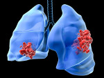lung cancer 3