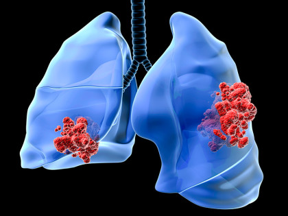 FDA approves Genentech drug for advanced lung cancer
