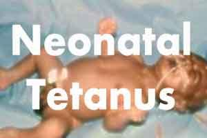 PGIMER confirms diagnosis of neonatal tetanus in infant