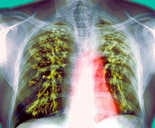 Govt revisits strategy to combat tuberculosis: Nadda