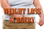 weight loss suregry
