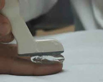 Ultrasound nail