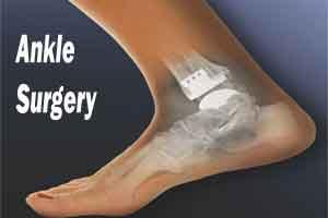 Delhi doctors perform rare ankle surgery on footballer