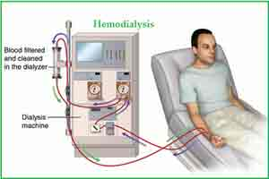 Four dialysis machines installed in Udhampur hospital