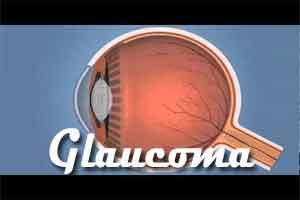 Researchers discover three glaucoma related genes