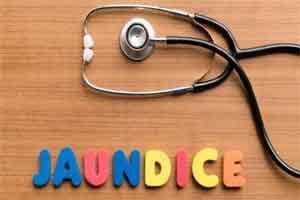 More than 500 jaundice cases in Shimla