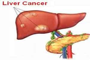 Saffron-based crocin can prevent liver cancer