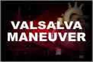 Valsalva Maneuver gets modified for the treatment of SVT