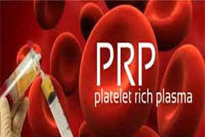 PRP injections: New alternative to knee surgery