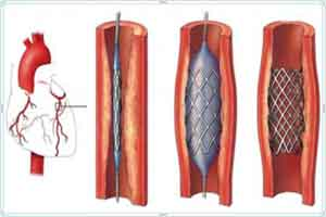 No surgery under Japanese method to remove arteries blockage