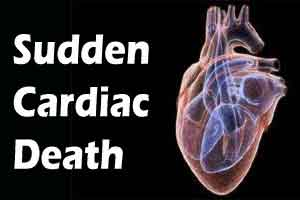 Scientists find potential treatment for sudden cardiac death