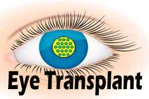 Chinese boy recovers eyesight after cornea transplant from pig