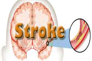 WHO urges SE Asian countries to strengthen vigilance against stroke