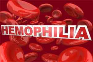 Only 15 percent of haemophilia patients diagnosed in India