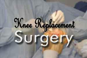 Knee surgery outcomes linked with education level