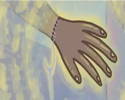 Hand Transplants facility soon at KEM Hospital
