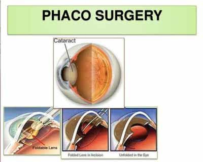 Government mulling conducting all eye operations through phaco surgery